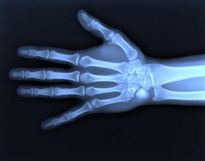 Handröntgenbild