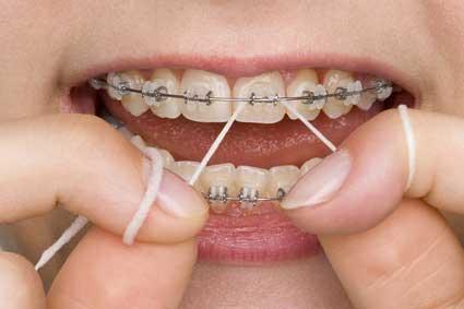 Feste Zahnspange: Reinigung mit Zahnseide