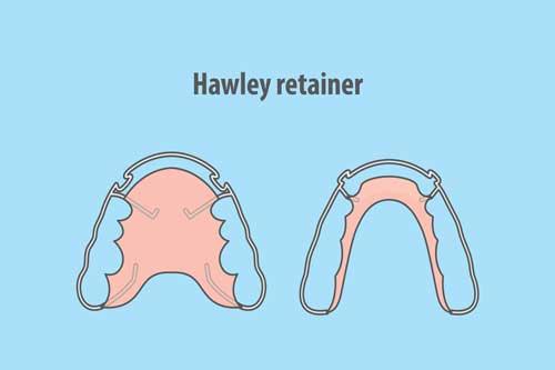 Hawley-Retainer [©paladjal, fotolia.com]